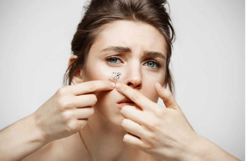 Home remedies for Blackheads
