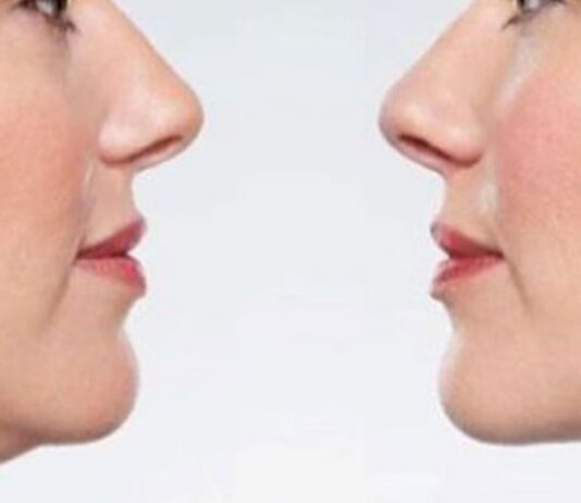 Jaw Fat: 9 Ways to Reduce Double Chin