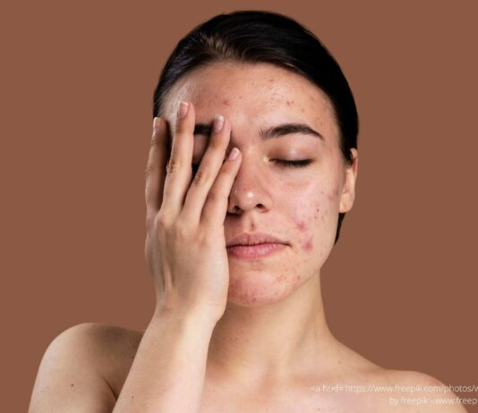 Fungal Acne: Symptoms, Causes, and Treatments